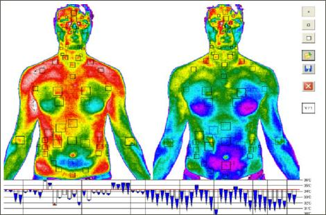 Medical Infrared Thermography - A Powerful Tool